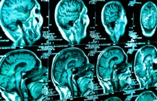 brain-scan-4